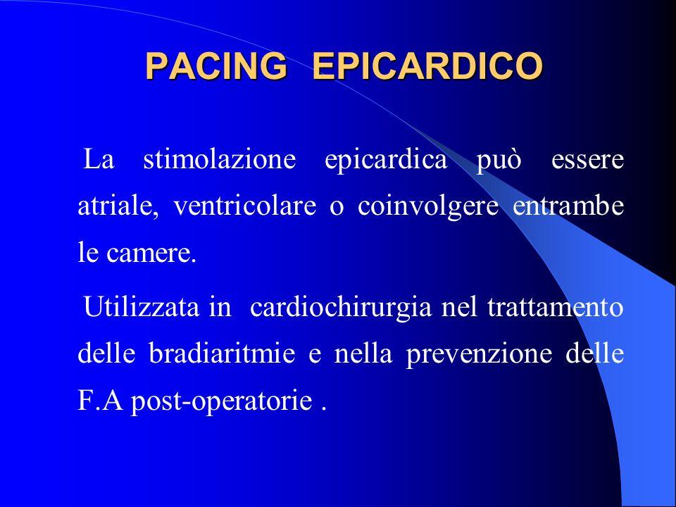 PACING EPICARDICOLa stimolazione epicardica può essere atriale, ventricolare o coinvolgere entrambe le camere.