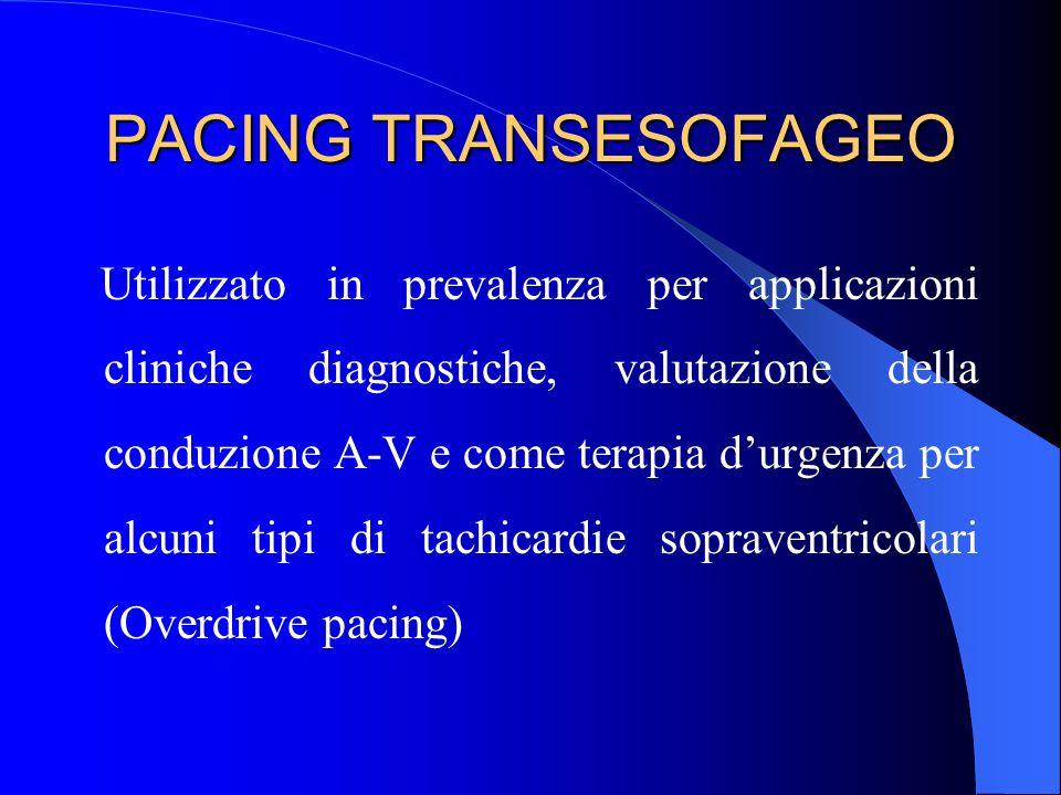 PACING TRANSESOFAGEO