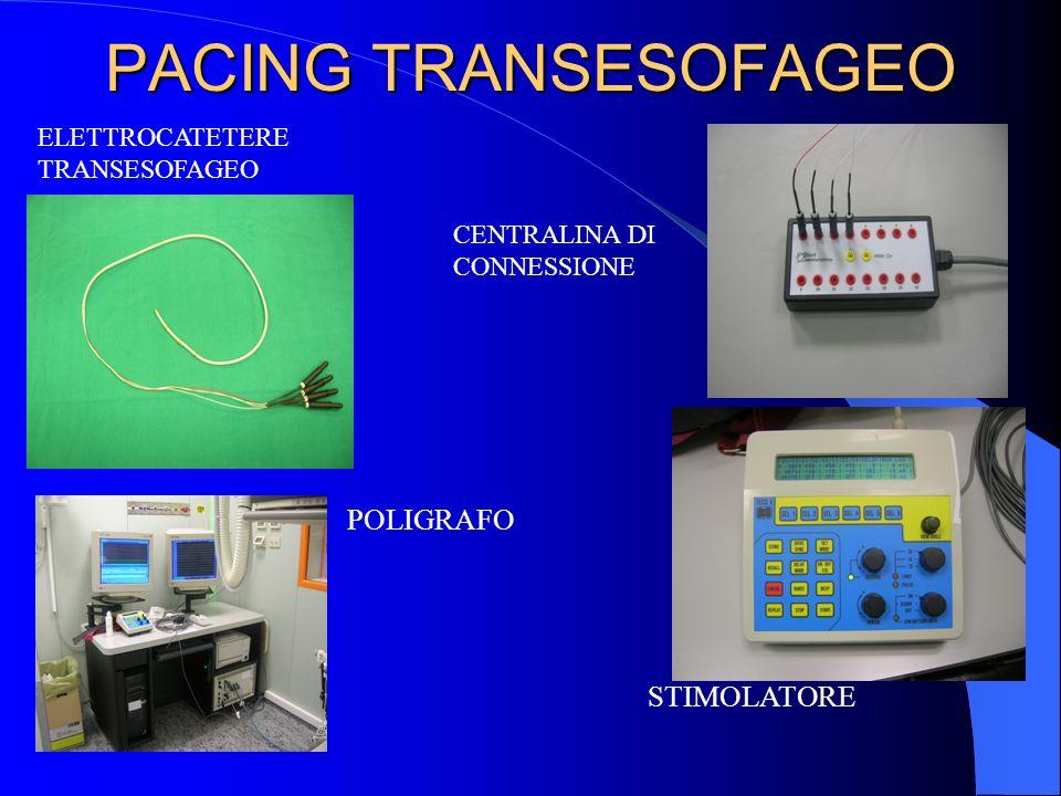 PACING TRANSESOFAGEO POLIGRAFO STIMOLATORE