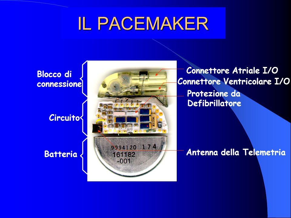 IL PACEMAKER Connettore Atriale I/O Blocco di connessione