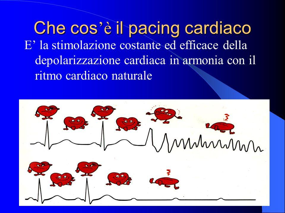 Che cos'è il pacing cardiaco