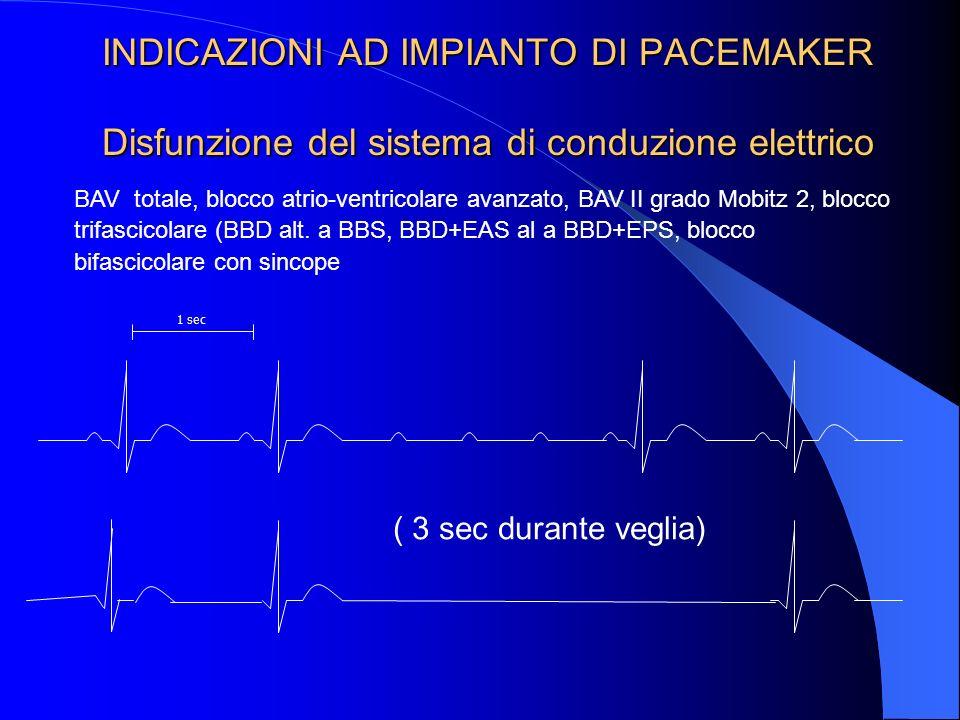 INDICAZIONI AD IMPIANTO DI PACEMAKER Disfunzione del sistema di conduzione elettrico