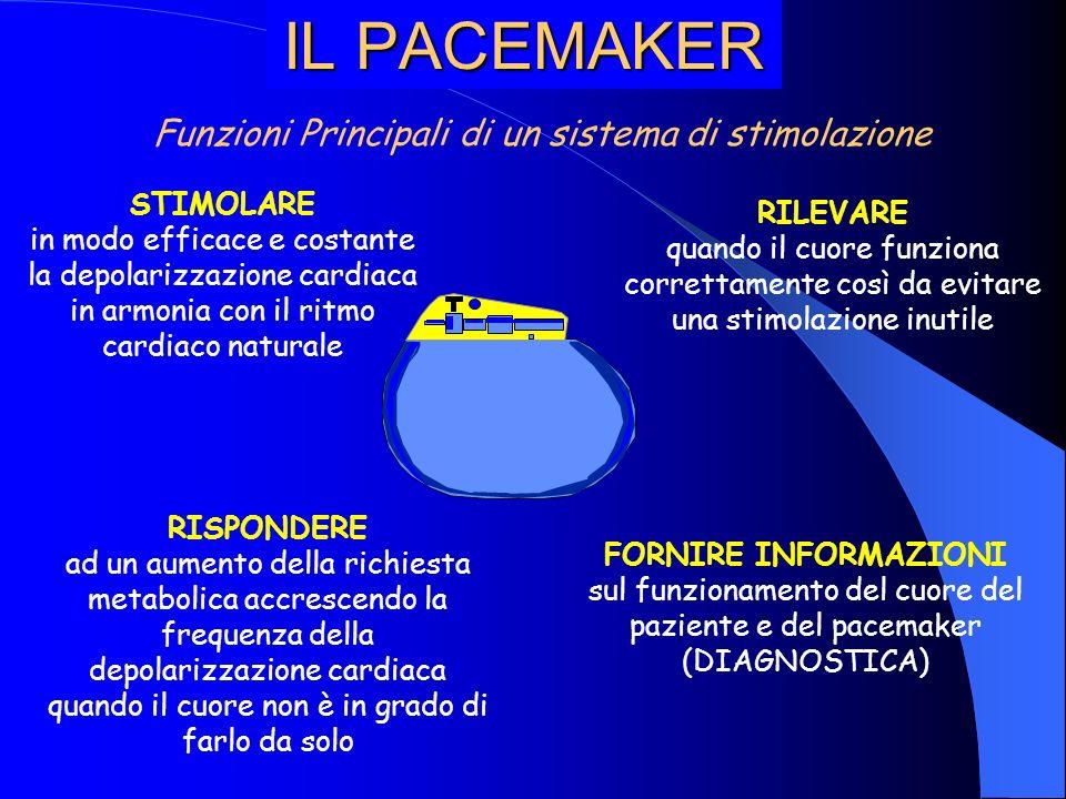 IL PACEMAKER Funzioni Principali di un sistema di stimolazione
