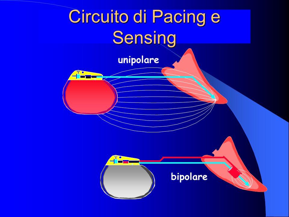 Circuito di Pacing e Sensing