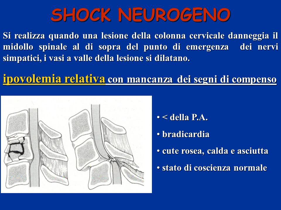 SHOCK NEUROGENO ipovolemia relativa con mancanza dei segni di compenso
