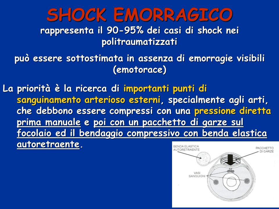 SHOCK EMORRAGICO rappresenta il 90-95% dei casi di shock nei politraumatizzati. può essere sottostimata in assenza di emorragie visibili (emotorace)