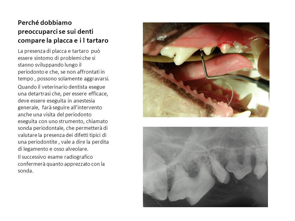 Perché dobbiamo preoccuparci se sui denti compare la placca e i l tartaro