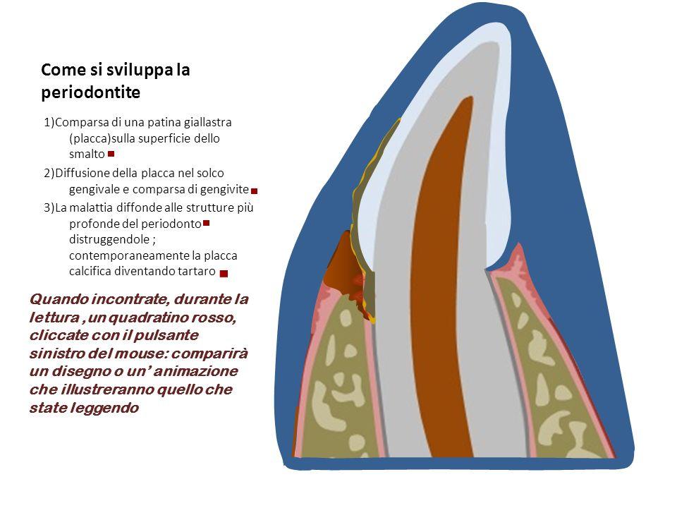 Come si sviluppa la periodontite