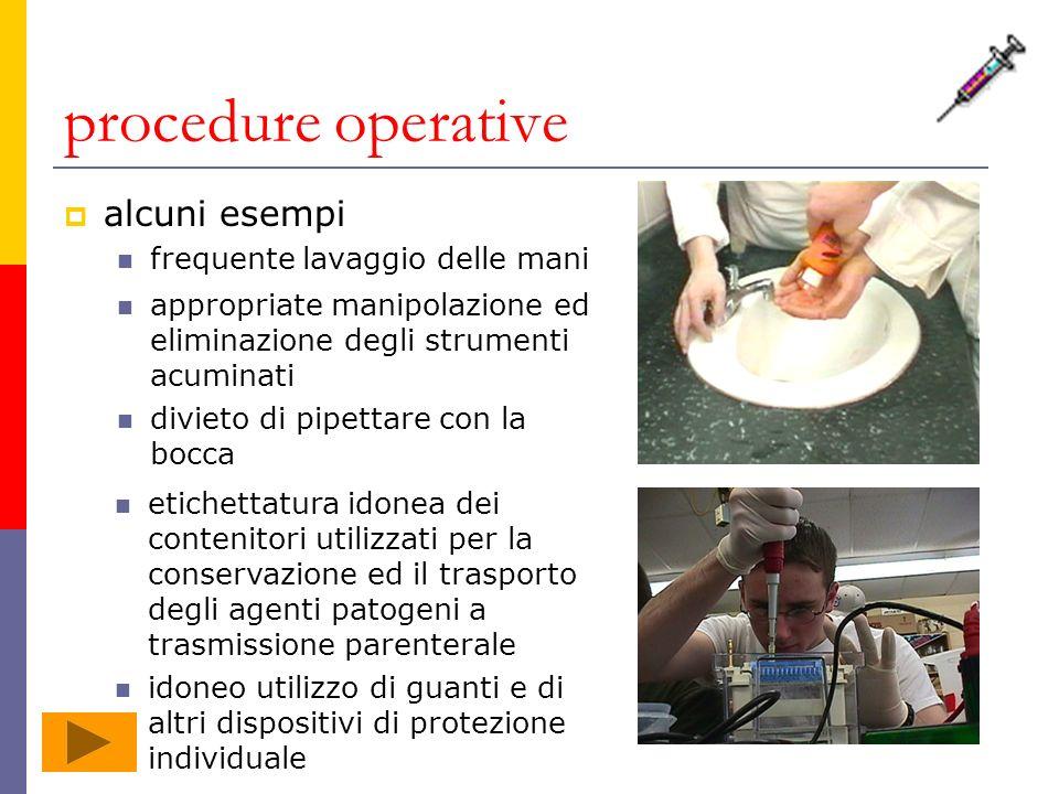 procedure operative alcuni esempi frequente lavaggio delle mani