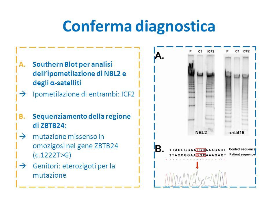 Conferma diagnostica Southern Blot per analisi dell'ipometilazione di NBL2 e degli α-satelliti. Ipometilazione di entrambi: ICF2.