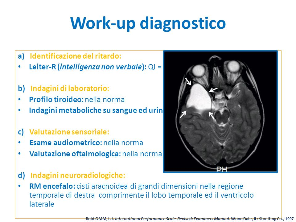 Work-up diagnostico a) Identificazione del ritardo: