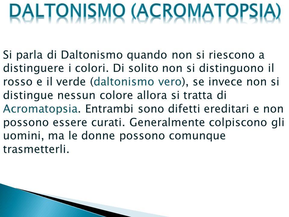 Daltonismo (Acromatopsia)