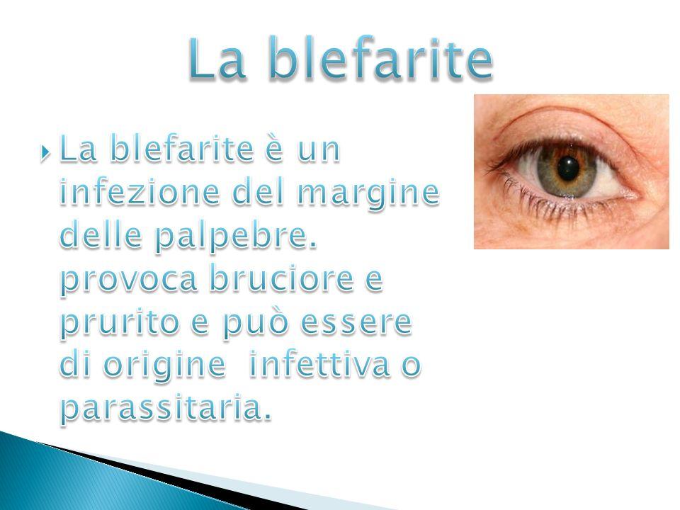 La blefarite