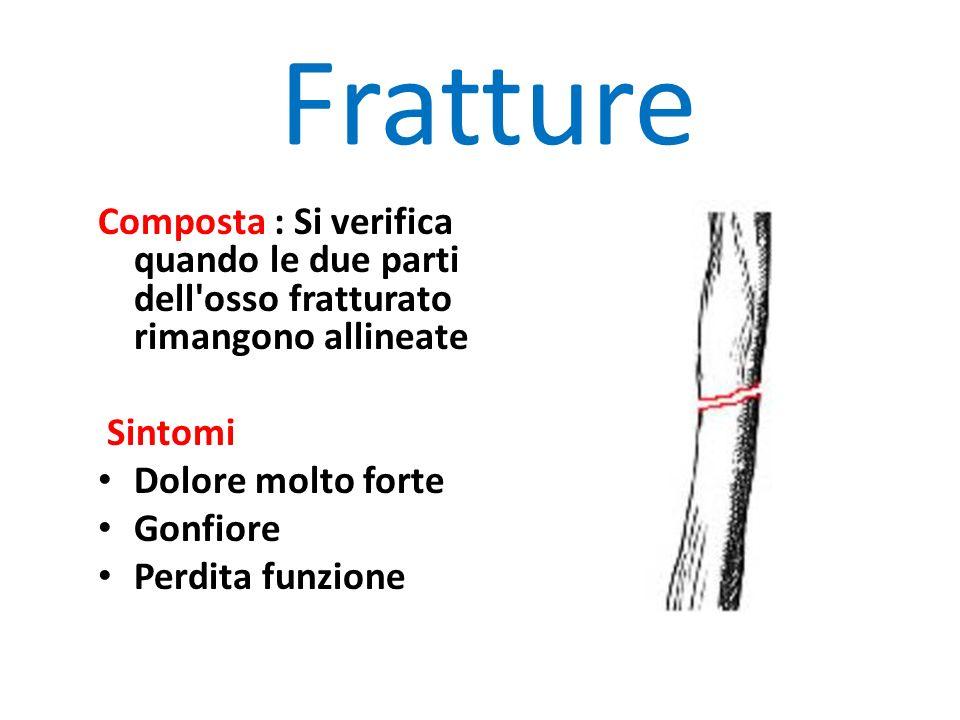 Fratture Composta : Si verifica quando le due parti dell osso fratturato rimangono allineate. Sintomi.