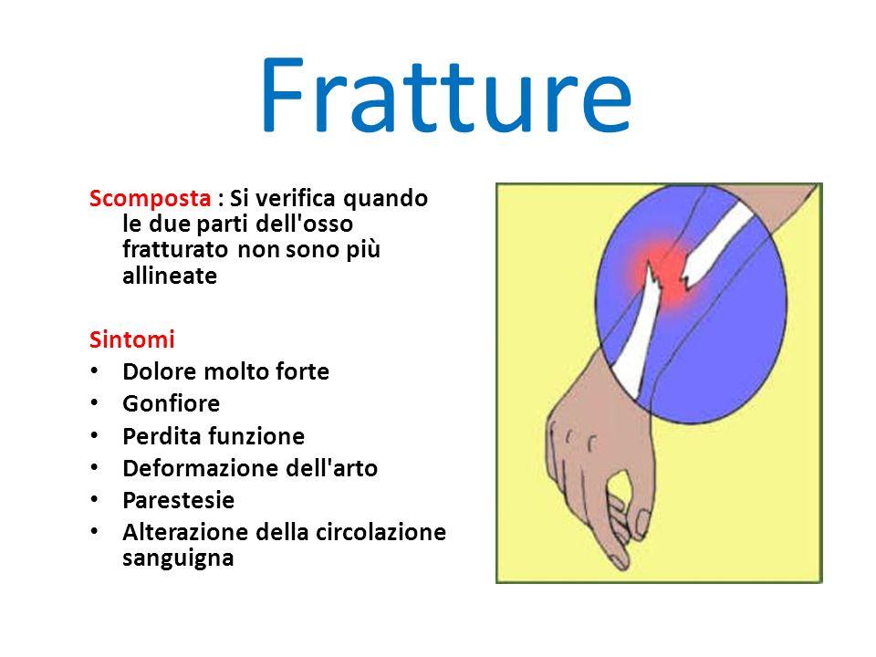 Fratture Scomposta : Si verifica quando le due parti dell osso fratturato non sono più allineate. Sintomi.