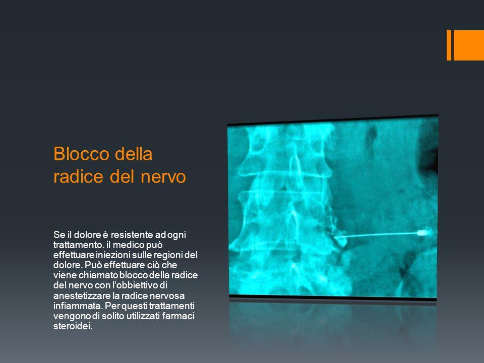 Blocco della radice del nervo