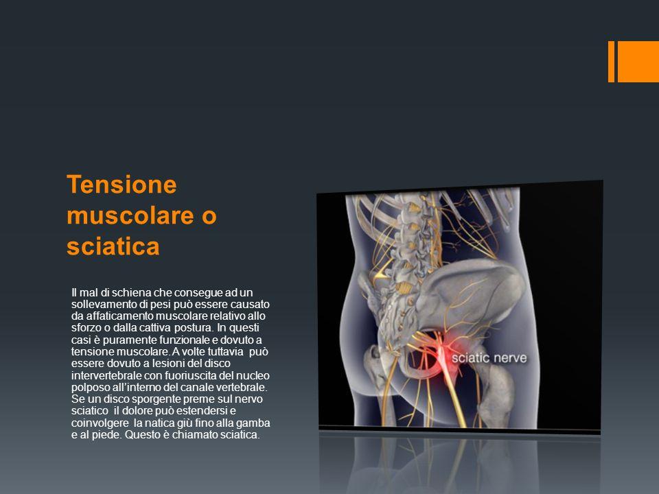 Tensione muscolare o sciatica