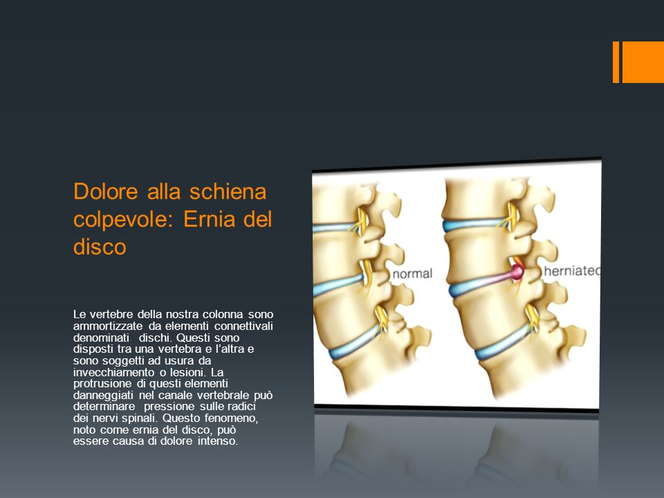 Dolore alla schiena colpevole: Ernia del disco