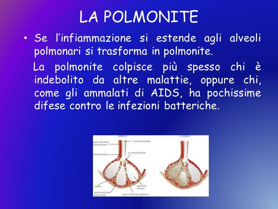 LA POLMONITE Se l'infiammazione si estende agli alveoli polmonari si trasforma in polmonite.