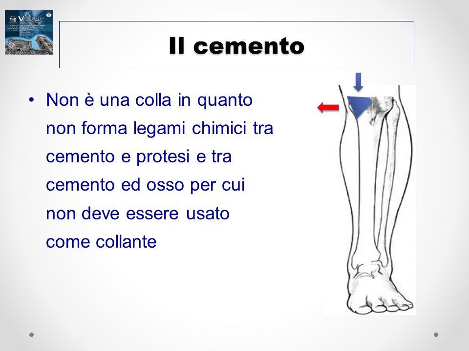Il cemento Non è una colla in quanto non forma legami chimici tra cemento e protesi e tra cemento ed osso per cui non deve essere usato come collante.