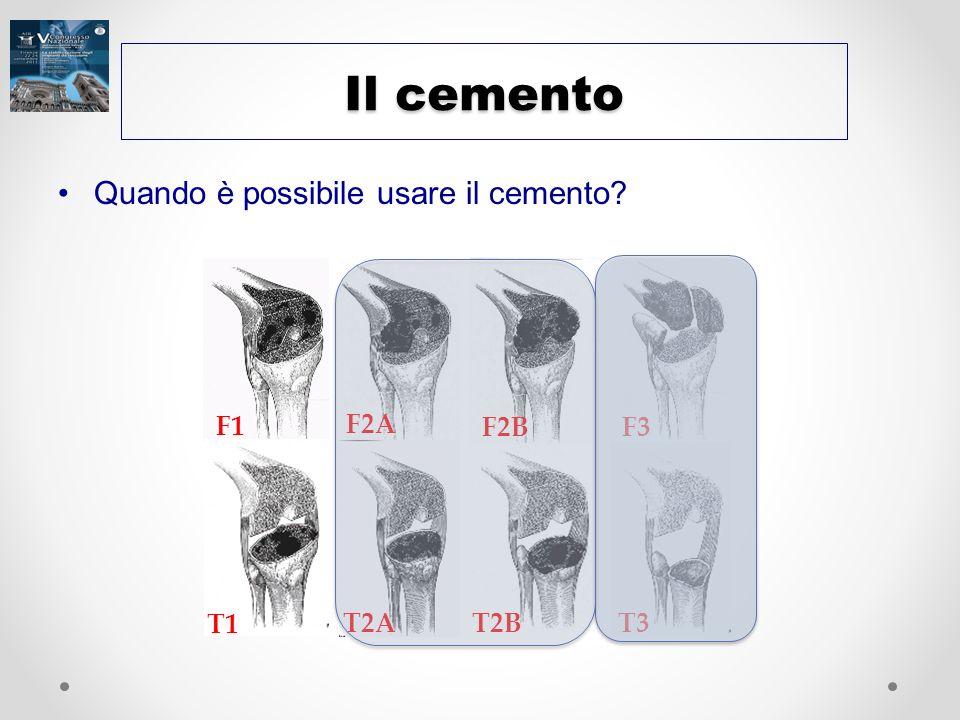 Il cemento Quando è possibile usare il cemento F2A F3 F2B F1 T2B T2A