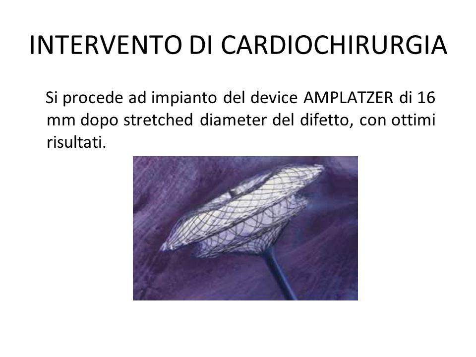 INTERVENTO DI CARDIOCHIRURGIA