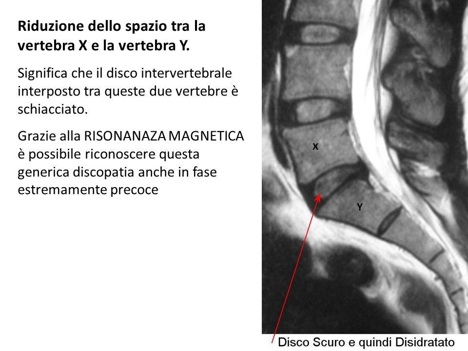 Riduzione dello spazio tra la vertebra X e la vertebra Y.