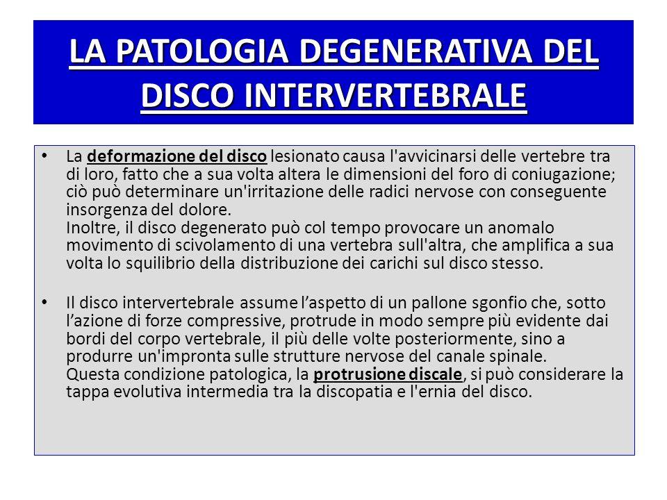 LA PATOLOGIA DEGENERATIVA DEL DISCO INTERVERTEBRALE