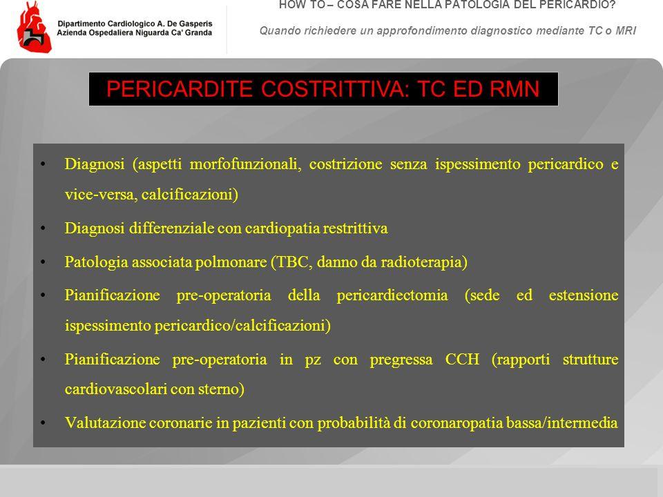 PERICARDITE COSTRITTIVA: TC ED RMN