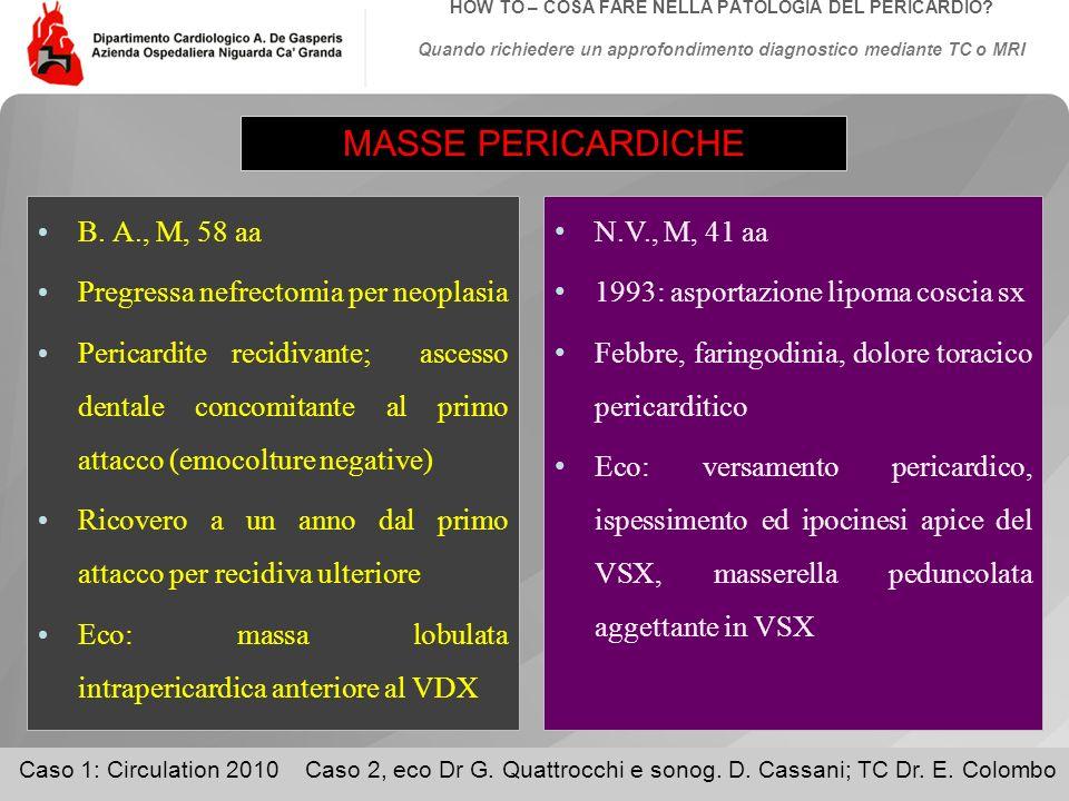 MASSE PERICARDICHE B. A., M, 58 aa Pregressa nefrectomia per neoplasia