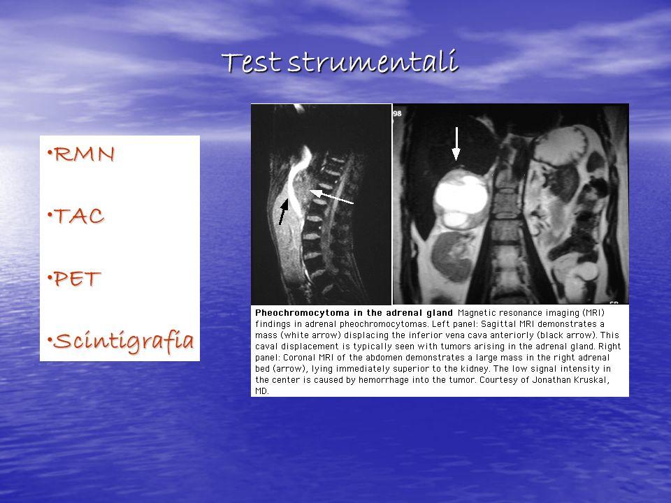 Test strumentali RMN TAC PET Scintigrafia