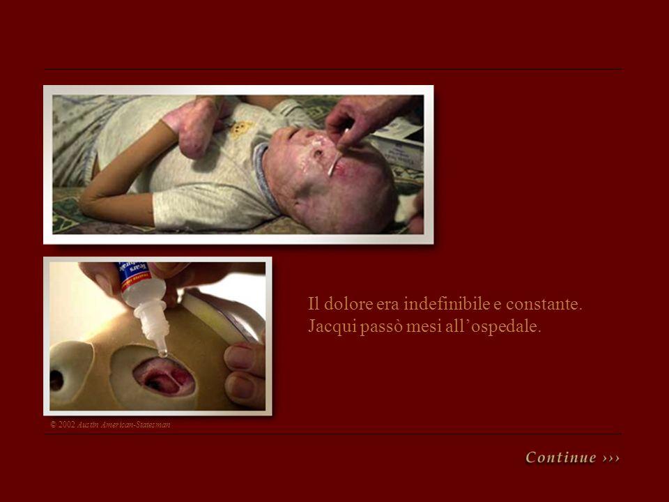 Il dolore era indefinibile e constante. Jacqui passò mesi all'ospedale.