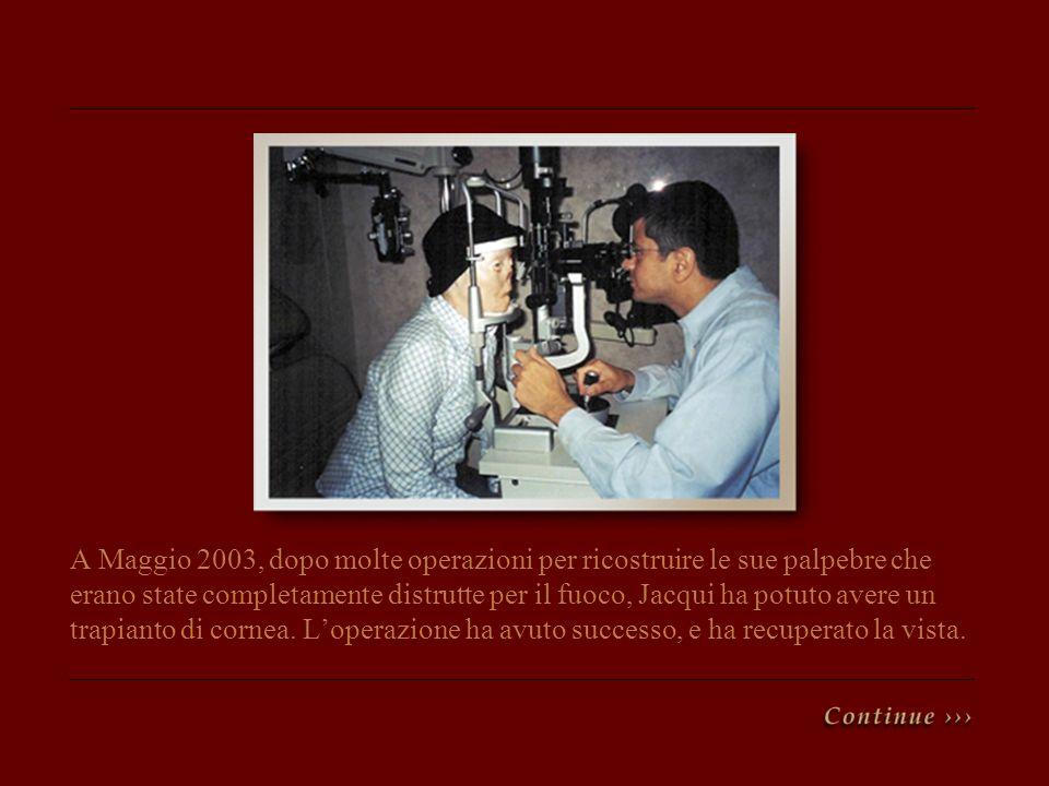 A Maggio 2003, dopo molte operazioni per ricostruire le sue palpebre che erano state completamente distrutte per il fuoco, Jacqui ha potuto avere un trapianto di cornea.