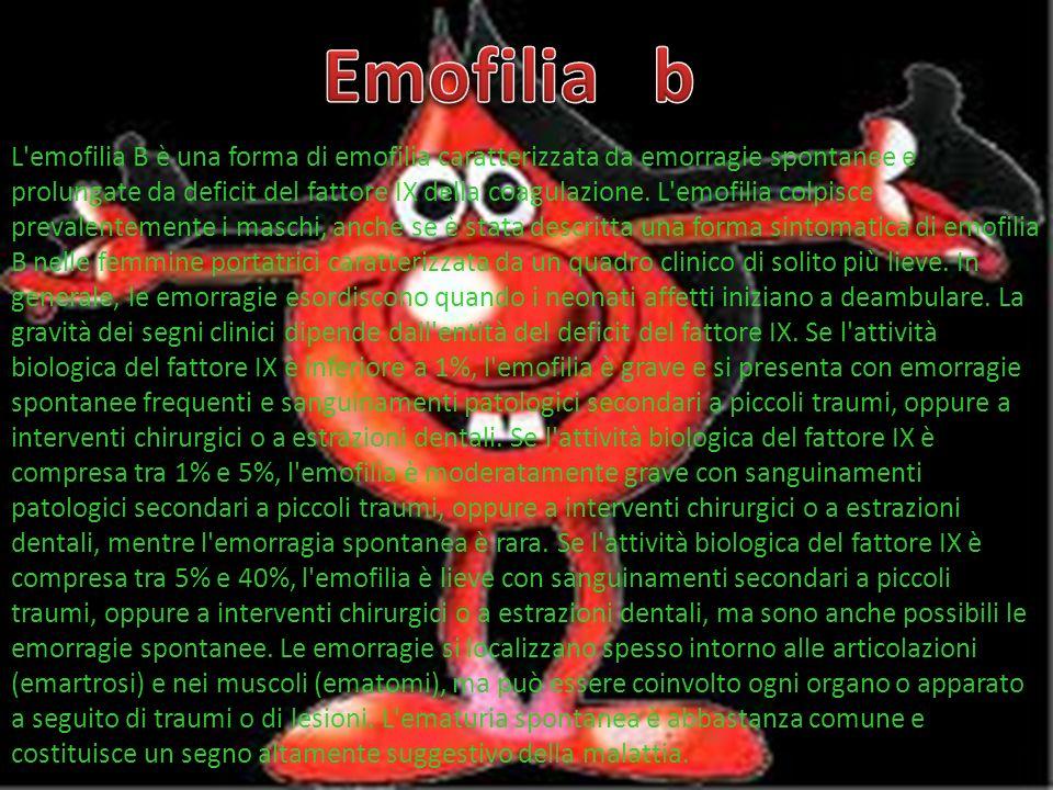 Emofilia b