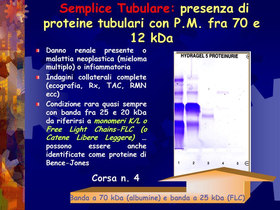 Banda a 70 kDa (albumine) e banda a 25 kDa (FLC)