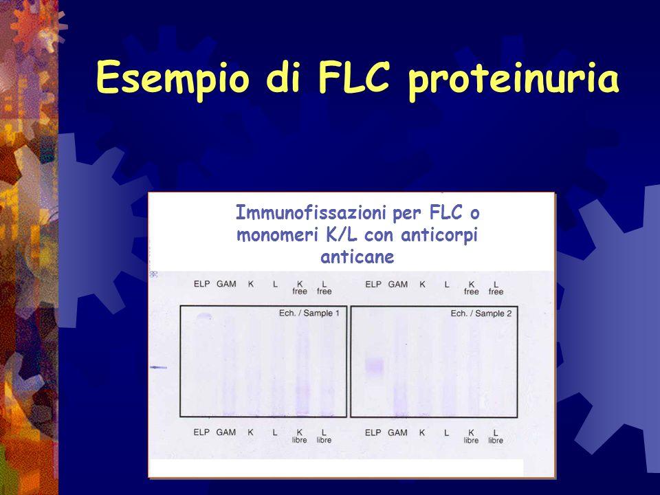 Esempio di FLC proteinuria