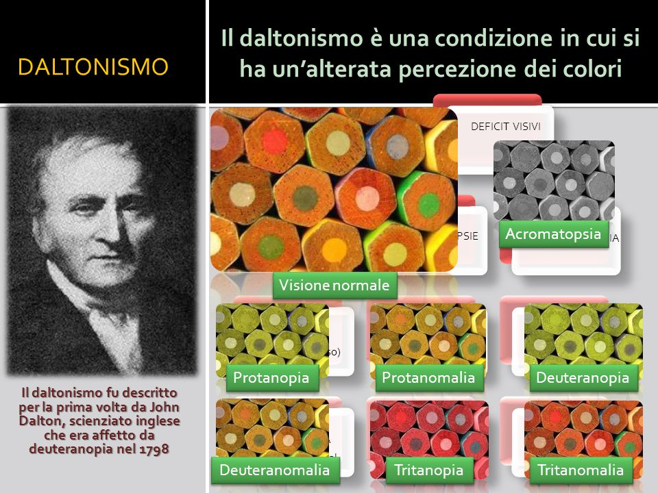 DALTONISMO Il daltonismo è una condizione in cui si ha un'alterata percezione dei colori. DEFICIT VISIVI.