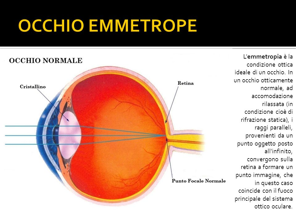 OCCHIO EMMETROPE