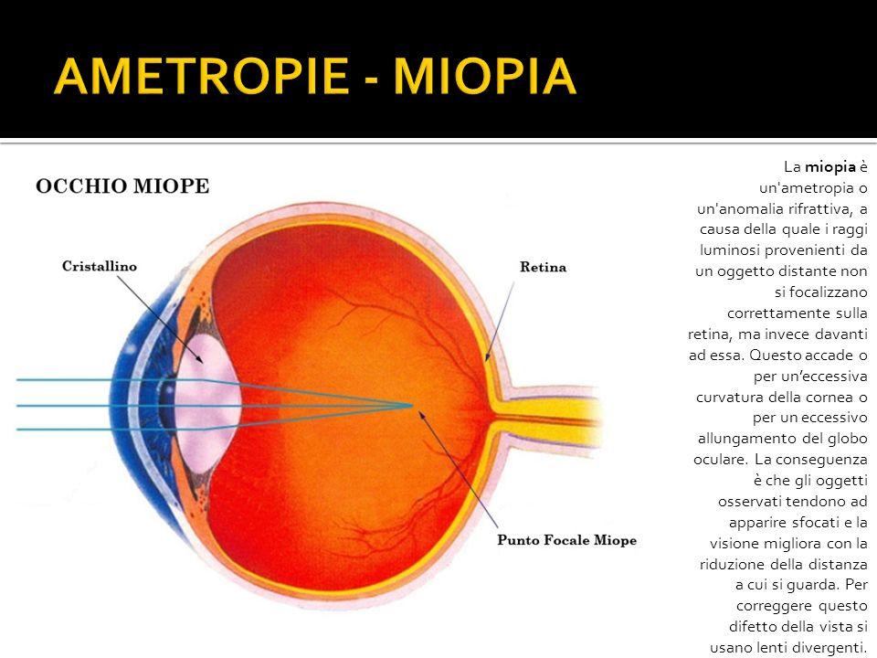 AMETROPIE - MIOPIA