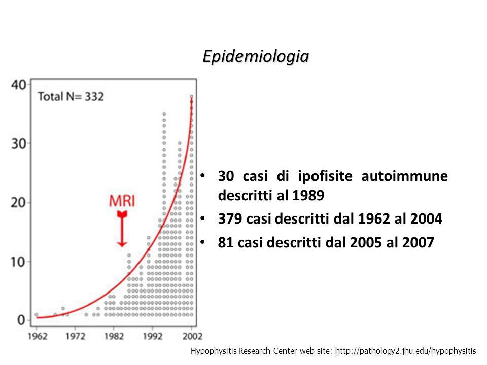Epidemiologia 30 casi di ipofisite autoimmune descritti al 1989