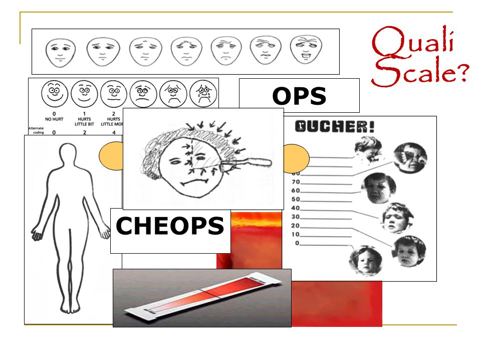 Quali Scale OPS CHEOPS 7
