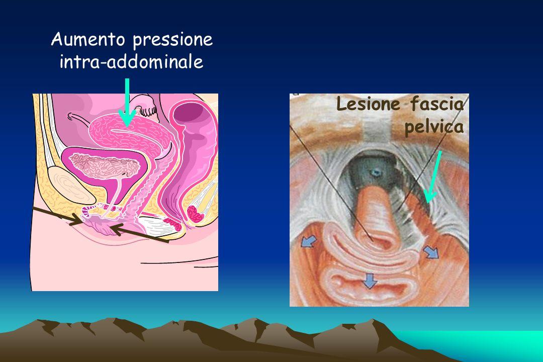 Aumento pressione intra-addominale
