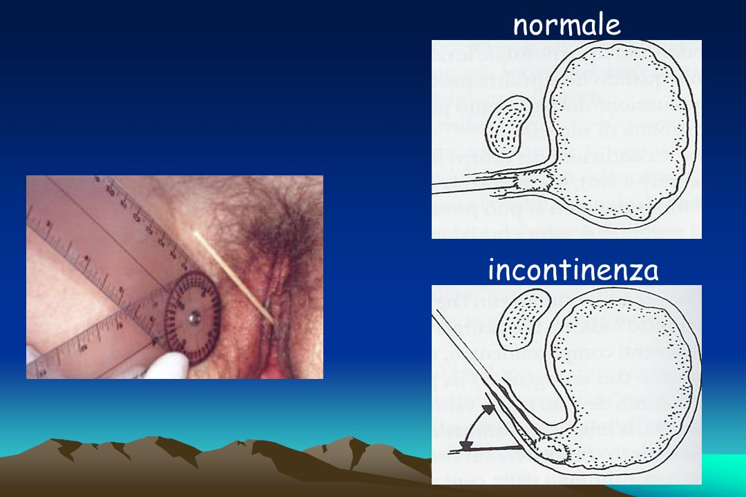 normale incontinenza