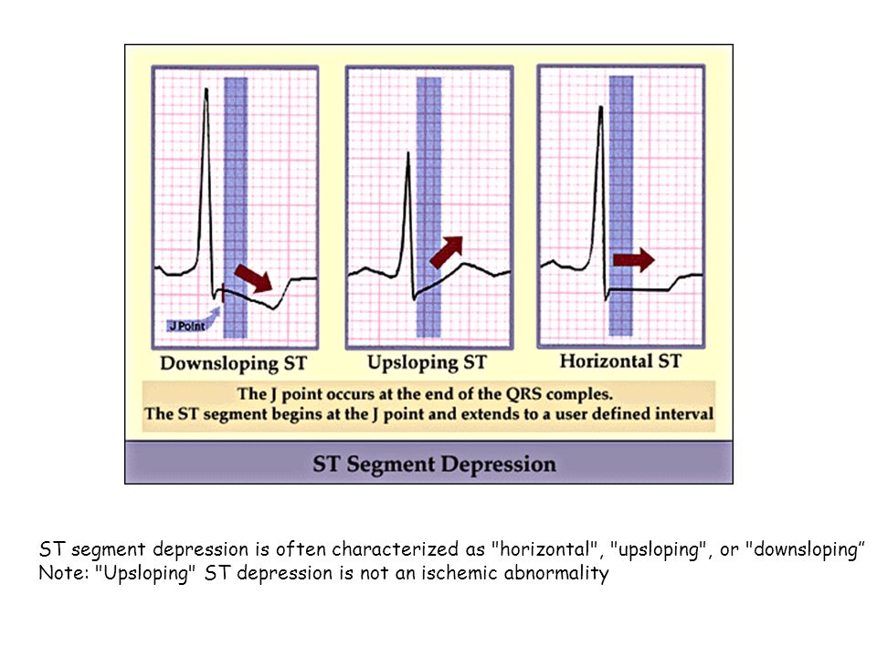 ST segment depression is often characterized as horizontal , upsloping , or downsloping