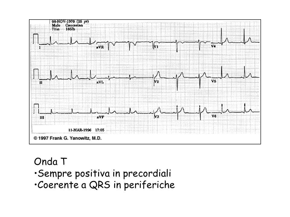 Onda T Sempre positiva in precordiali Coerente a QRS in periferiche