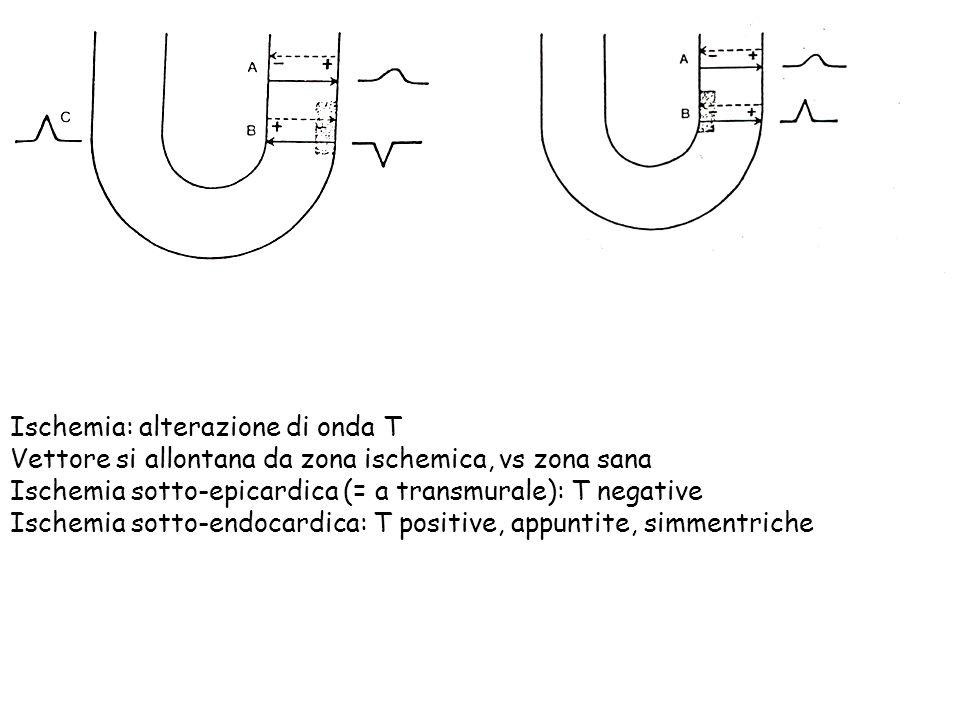 Ischemia: alterazione di onda T