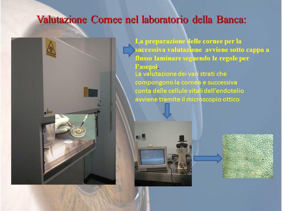 Valutazione Cornee nel laboratorio della Banca: