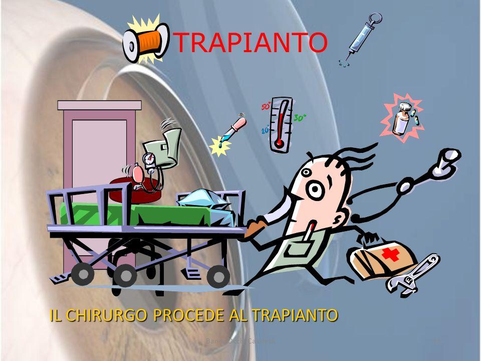 TRAPIANTO IL CHIRURGO PROCEDE AL TRAPIANTO Banca Occhi Calabria