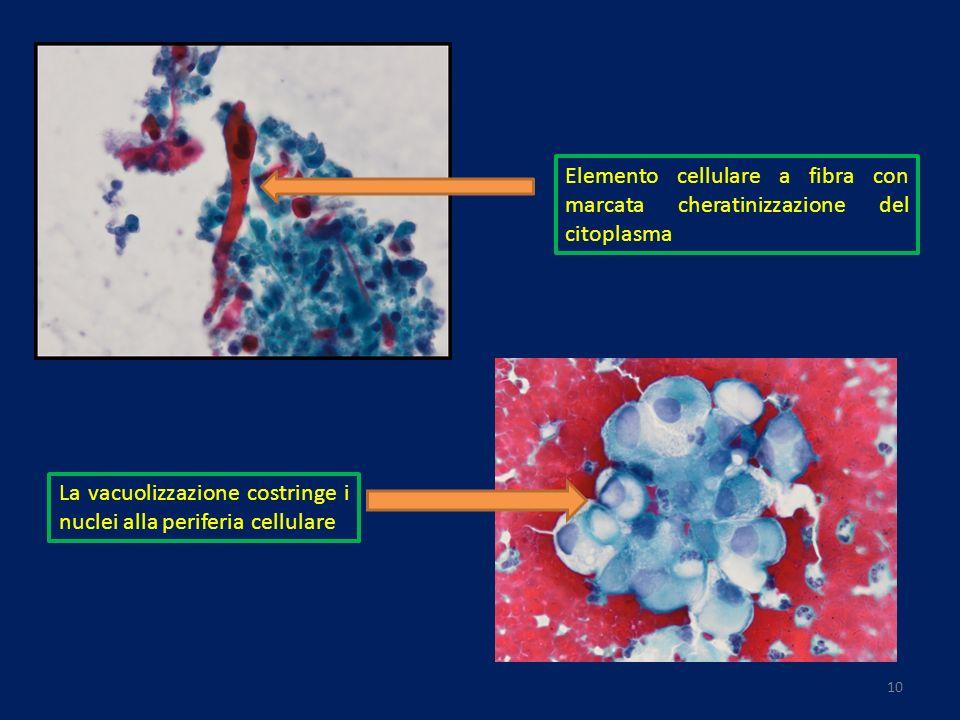 Elemento cellulare a fibra con marcata cheratinizzazione del citoplasma