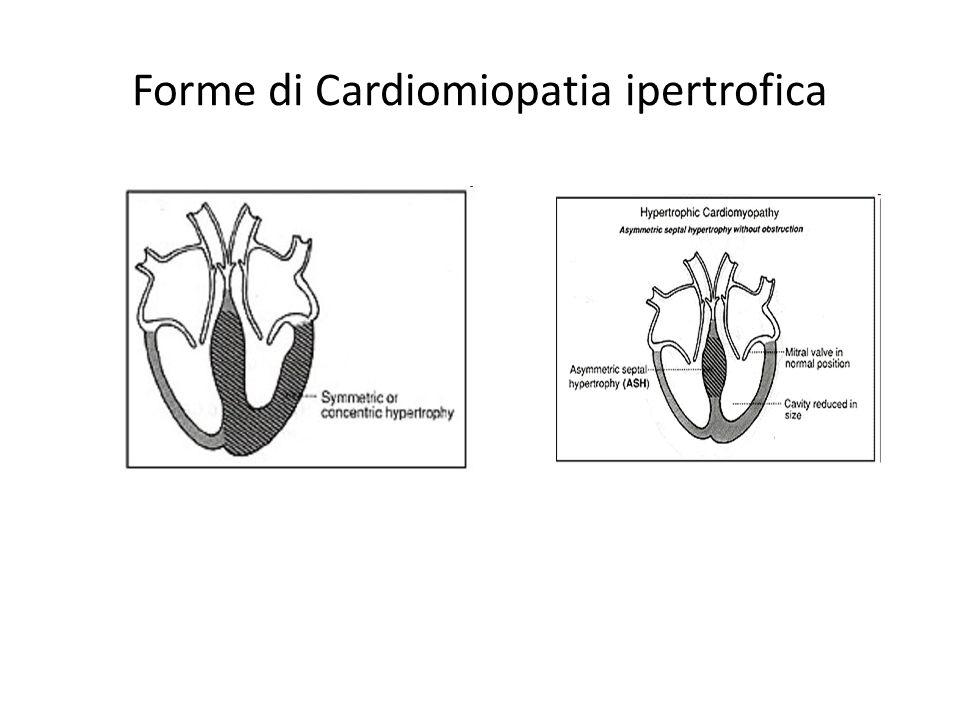 Forme di Cardiomiopatia ipertrofica